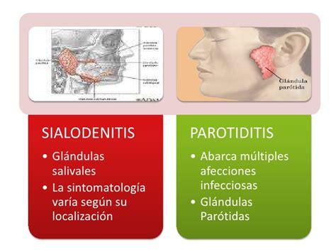 Inflamación e infección de las glándulas salivales