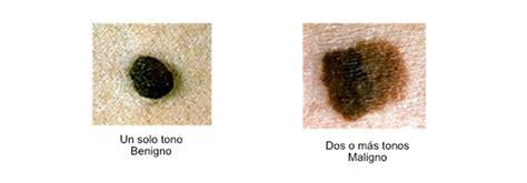Infogen   Melanoma, Cáncer de piel y embarazo