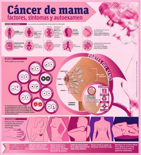 Infografía sobre el cáncer de seno: Síntomas y exámen ...