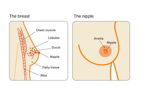 Invasive ductal breast cancer