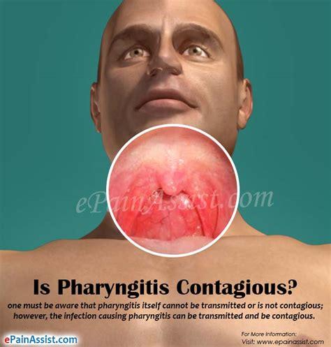 Is Pharyngitis Contagious & How Long Does it Last?