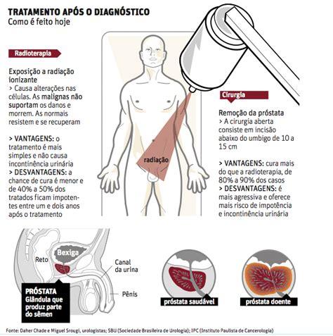 Jogo Aberto - Noticias - Cirurgia cura câncer de próstata ...