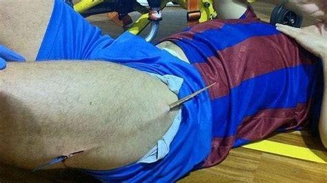 Jugador de fútbol sala, ensartado por una astilla ...