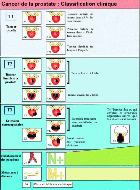 La classification TNM des cancers de la prostate