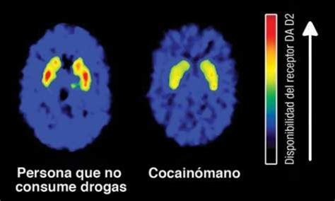 La cocaína modifica nuestro cerebro   La bitácora del ...