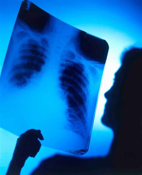 La cura contra el cáncer podría vivir en su cuerpo   Taringa!