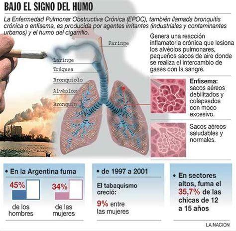 La obstrucción pulmonar crónica, una enfermedad silenciosa ...