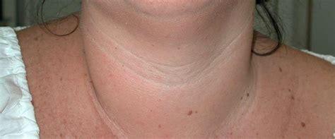 La patología Tiroidea es cada vez más frecuente
