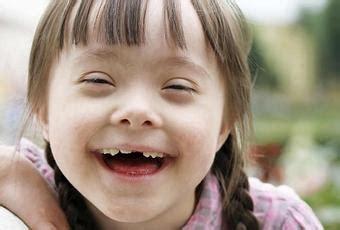 LA RAE dejará de definir al síndrome de down como una ...