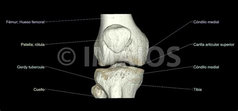 La rodilla (IRM): atlas de anatomía en imágenes médicas