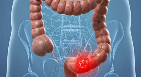 La supervivencia del cáncer colorrectal se duplica en los ...