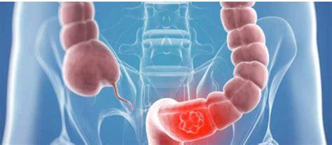 La supervivencia en el cáncer de colon avanzado se duplica ...