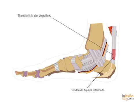 La tendinitis de Aquiles es muy frecuente en deportistas ...