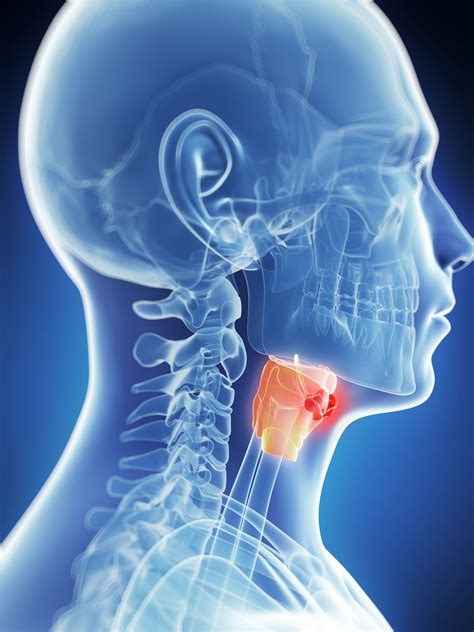 Laryngeal Cancer Treatment and Prognosis