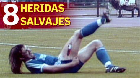 Las 8 heridas más impactantes de la historia del deporte ...