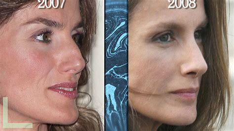Las fotos del antes y el después de las operaciones ...