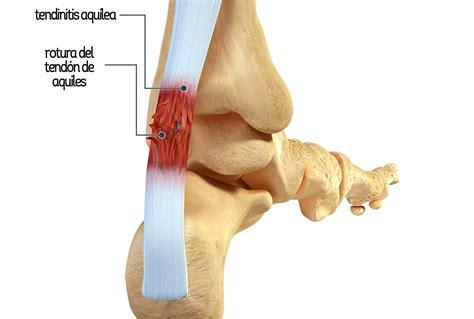 Las lesiones más habituales en el mundo del running ...