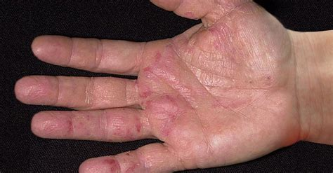 ¡Las manos dan la primera señal de alarma de cáncer ...