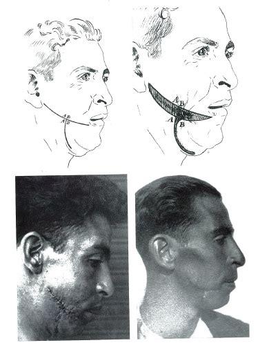 Las otras cicatrices de la Guerra Civil - Los cirujanos ...