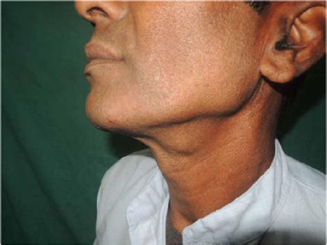 Lateral view of the left side of neck showing swelling in ...