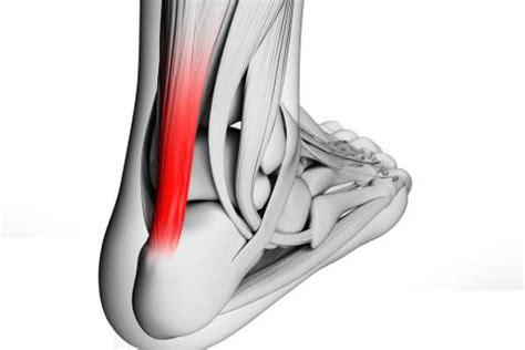 Lesiones del tendón de Aquiles, qué son - Ejercicio y deporte