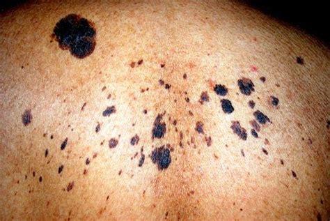 Lesiones precancerosas de la piel: prevenir el cáncer