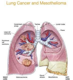 Let's Talk About Lung Cancer: The Initial Symptoms of ...