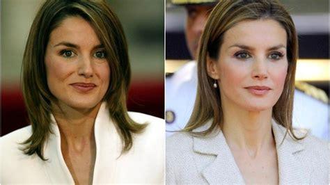 Letizia antes y después: todas las operaciones de la reina