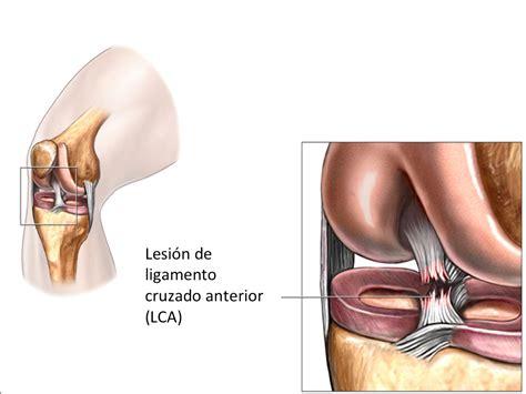 Ligamentos de la Rodilla - Traumatologo