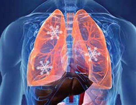 Llega a México terapia innovadora contra cáncer de pulmón ...