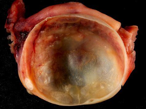Los mejores tratamientos para el síndrome del ovario ...