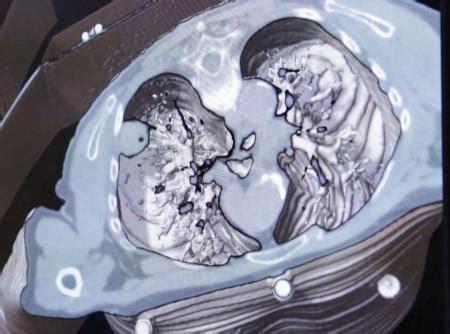 Los nuevos sistemas de radioterapia permiten curar el ...