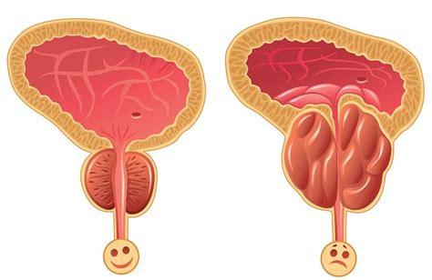 Los síntomas del cáncer de próstata