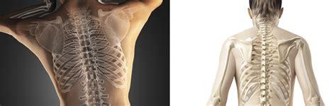 Lumbalgia y ciatica, ejercicios para aliviar el dolor de ...