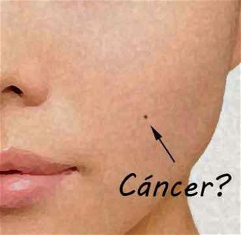 Lunares cancerígenos: Cómo reconocerlos? ~ Salud y Suerte