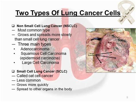 Lung Cancer By, Nazneen Chougle Neha Bhatkal Nilekha ...