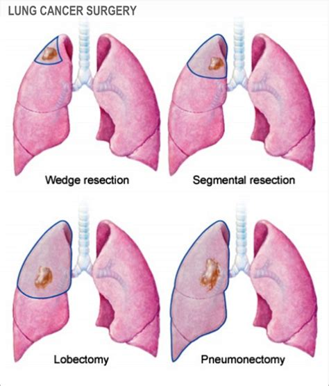 Lung Cancer Causes, Symptoms And Signs - Health And ...