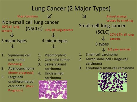 Lung Cancer. - ppt video online download
