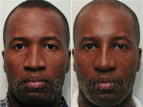 Male Ethnic Revision Rhinoplasty | African American ...