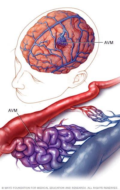 Malformación arteriovenosa cerebral - Síntomas y causas ...
