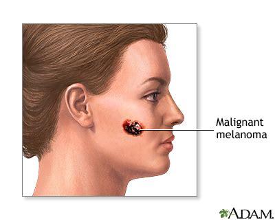 Malignant melanoma: MedlinePlus Medical Encyclopedia Image
