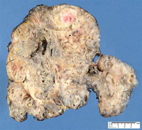 Malignant teratoma. Causes, symptoms, treatment Malignant ...