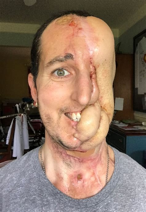 Man who lost half his face to cancer successfully has face ...