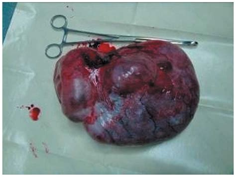 Management of giant ovarian teratoma: A case series and ...