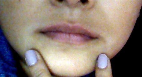 Manchas blancas en la cara – dermatologo.net