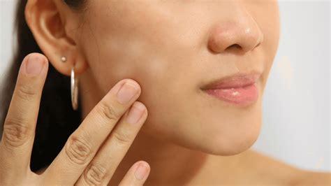 Manchas blancas en la cara   Skingroup Dermatólogos