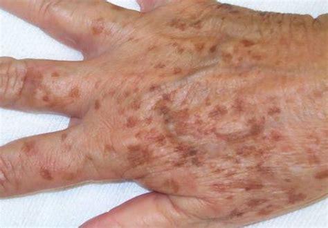 Manchas de hígado o manchas de la edad