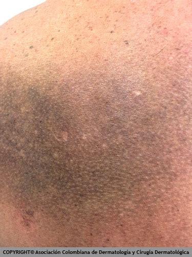 Manchas Oscuras   Manchas en la Piel: Causas y Tratamientos