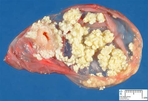 mature teratoma   Humpath.com   Human pathology