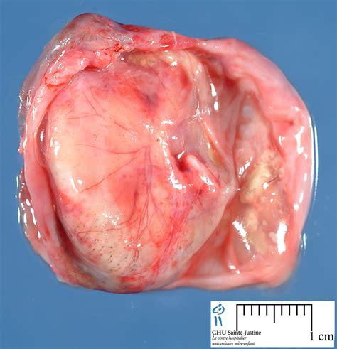 mature teratoma - Humpath.com - Human pathology